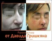 Фото до и после ринопластики от Давида Гришкяна