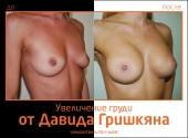 Увеличение груди от Давида Гришкяна