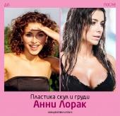 Ани Лорак до и после пластической хирургии