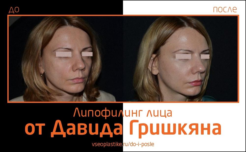 До и после липофилинга лица от Давида Гришкяна