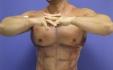 Внешний вид прооперированной зоны тела на следующий день после коррекции