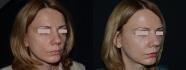Пациентка Давида Гришкяна до и после липофилинга лица