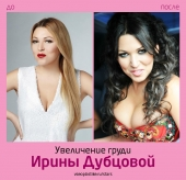 Ирина Дубцова до и после увеличения груди