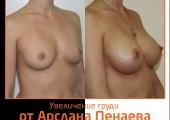 Увеличение груди до и после у Арслана Пенаева