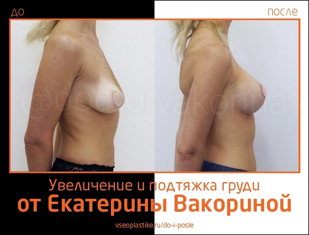 Пациентка Екатерины Вакориной до и после увеличения и подтяжки груди