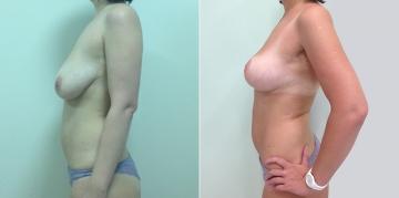 До и после подтяжки груди у Светланы Пшонкиной