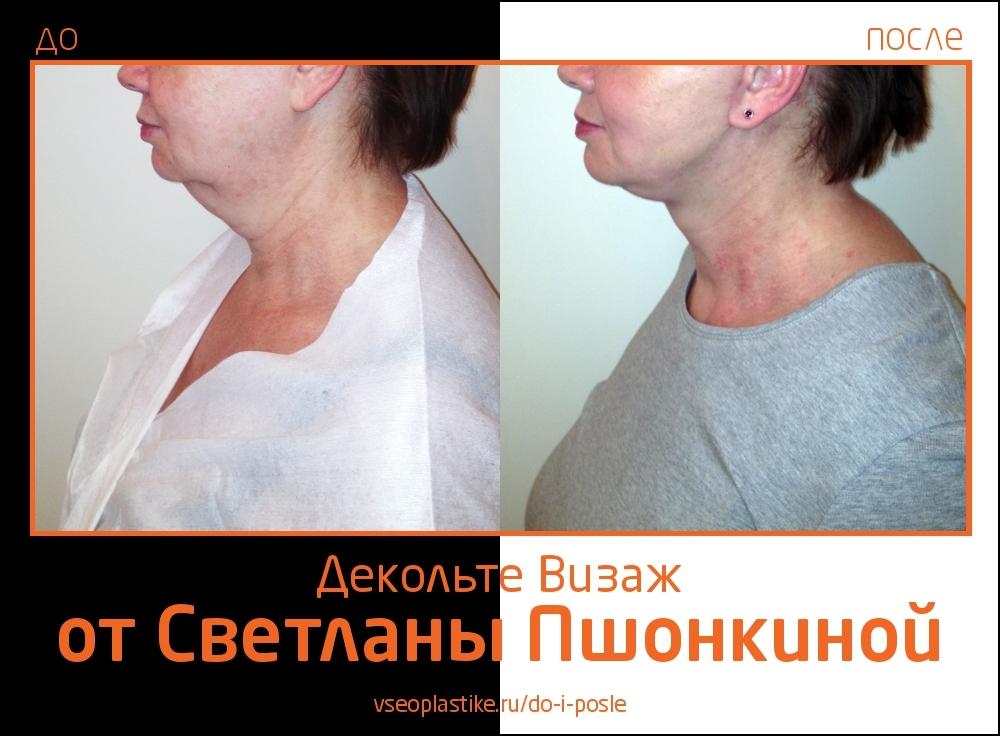 До и после омоложения «Декольте Визаж» у Светланы Пшонкиной