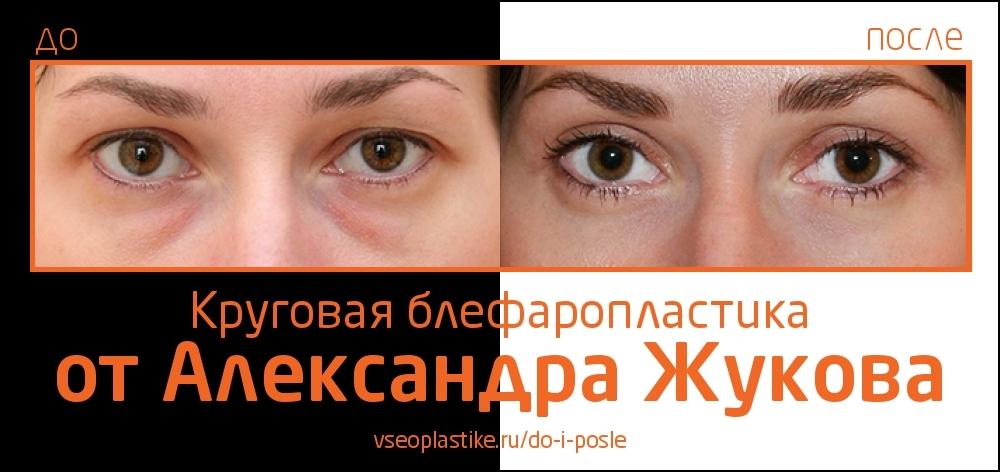 До и после круговой блефаропластики у Александра Жукова