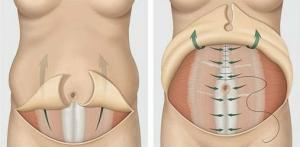 Абдоминопластика с удаление грыжи