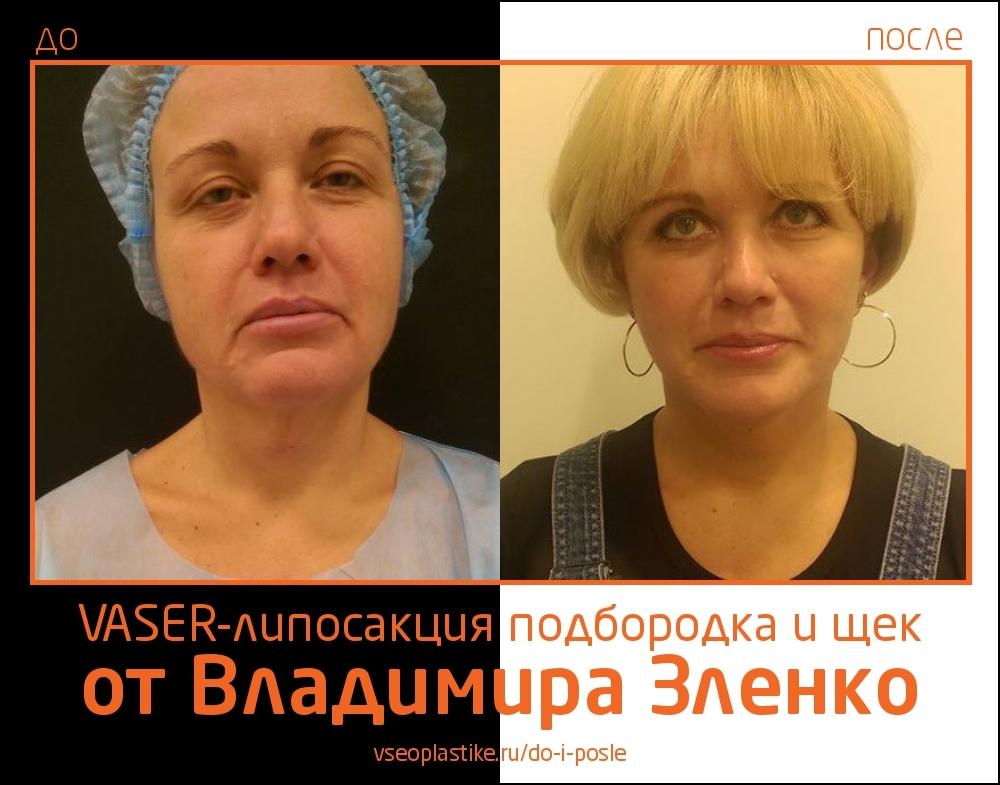 Vaser-липосакция подбородка и щек от Владимира Зленко