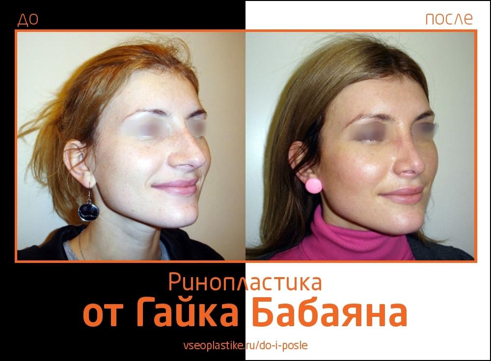 Фото до и после ринопластики у Гайка Бабаяна