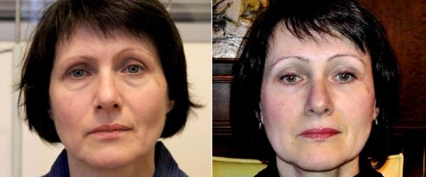 Фото пациентки до и после фейслифтинга в ОН КЛИНИК