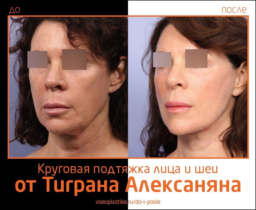 Круговая подтяжка лица и шеи и пластика век от Тиграна Алексаняна