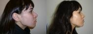 Пациентка Гайка Бабаяна до и после ринопластики