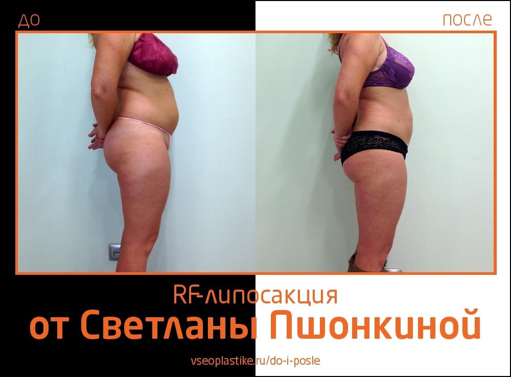 До и после RF-липосакции у Светланы Пшонкиной