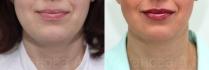 До и после установки мезонитей у Азизы Усмановой