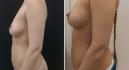 До и после липофилинга груди у Владимира Зленко