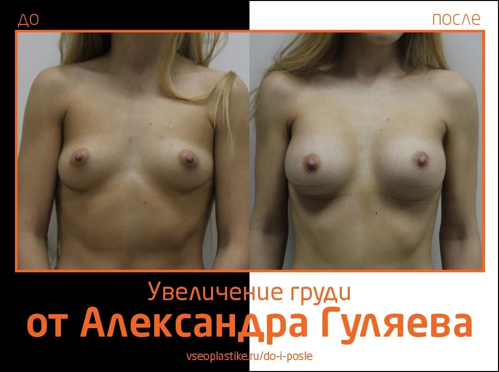 До и после увеличения груди у Александра Гуляева