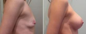 До и после пластики груди у Али Алиева