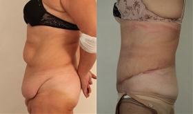 До и после абдоминопластики у Тиграна Алексаняна