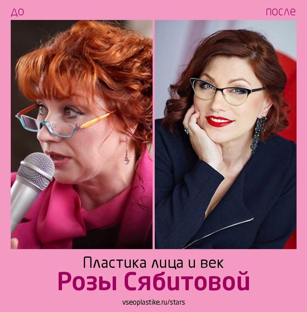 Роза Сябитова до и после пластики лица и век