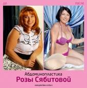 Роза Сябитова до и после абдоминопластики