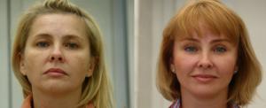 До и после эндоскопического фейслифтинга у Валерия  Якимца