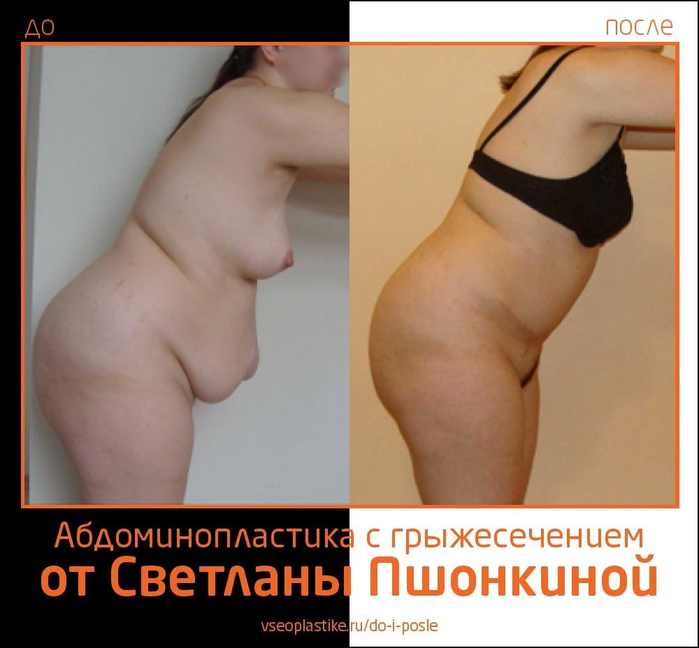 До и после абдоминопластики и грыжесечения у Светланы Пшонкиной