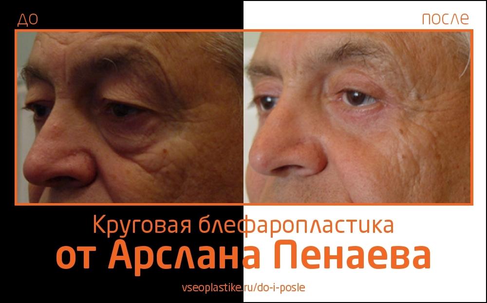 До и после круговой блефаропластики у Арслана Пенаева