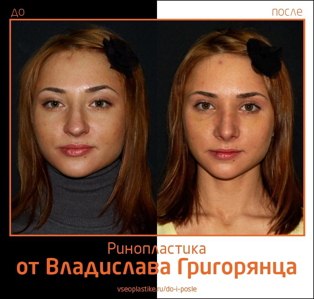 До и после ринопластики у Воладислава Григорянца