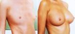 «Триумф Палас». Анна Тваури. Увеличение груди