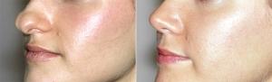 Раздвоенный кончик носа