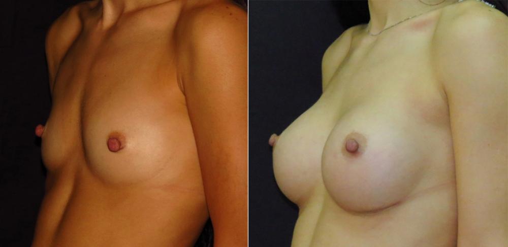 Геворг Степанян. До и после увеличения груди