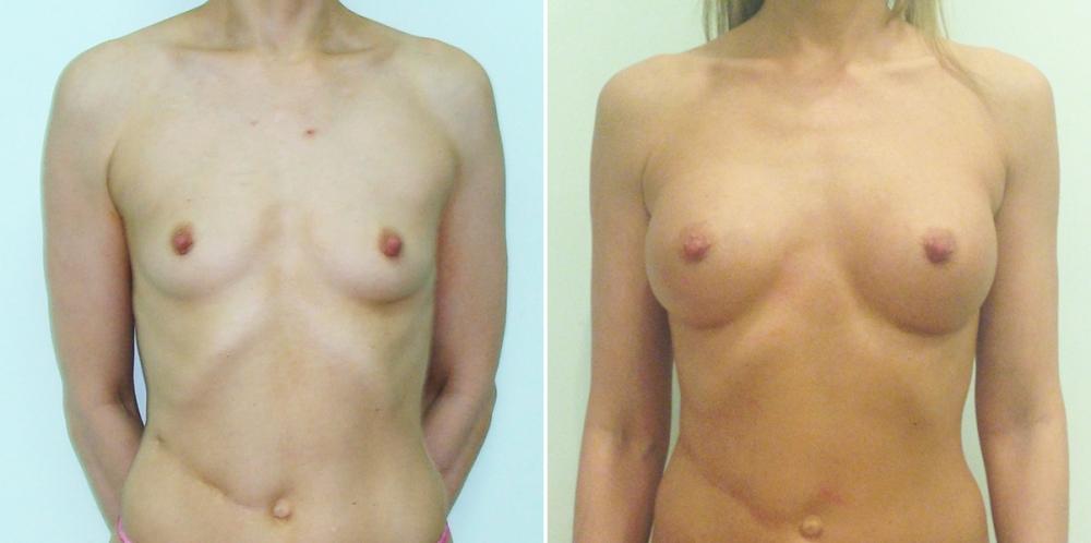 Светлана Пшонкина до и после увеличения груди