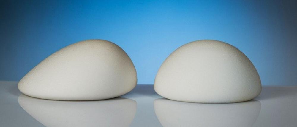 Импланты для увеличения груди B-Lite