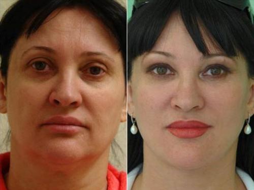 Пластическая хирургия мамедова медицинский центр пластической хирургии и косметологии минск