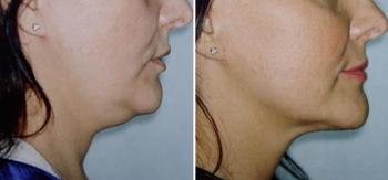 Фото до и после липосакции подбородка у Алексея Гварамии