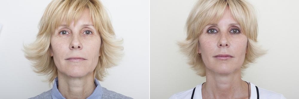 Олег Солдатов. Пациентка до и после подтяжки лица нитями