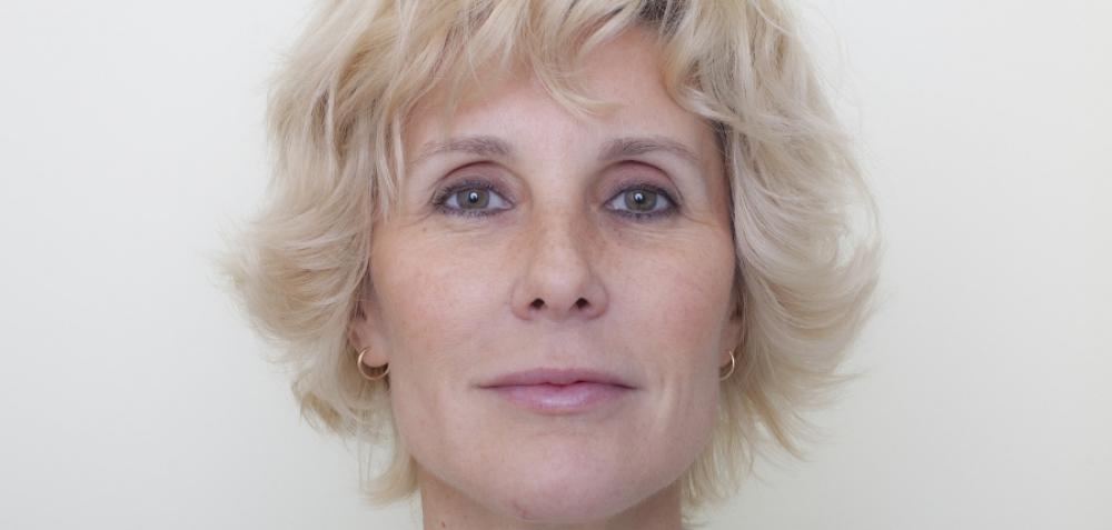 Пациентка после контурной пластики лица