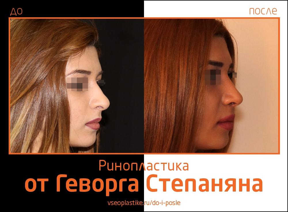 Геворг Степанян. Фото до и после ринопластики