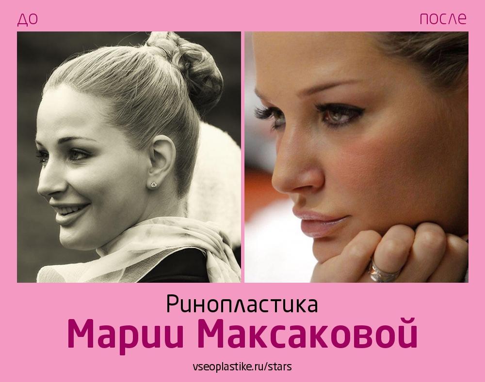 Мария Максакова ринопластика фото до и после