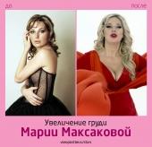 Мария Максакова до и после увеличения груди