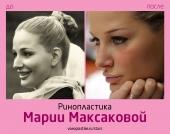 Мария Максакова ринопластика до и после