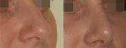 Нос до и после ринопластики у доктора Соломона Абрамяна