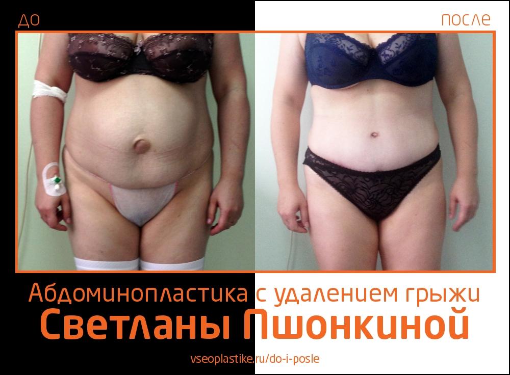 Фото до и после абдоминопластики с удалением грыжи у пластического хирурга Светланы Пшонкиной