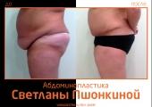 Фото до и после абдоминопластики у пластического хирурга Светланы Пшонкиной