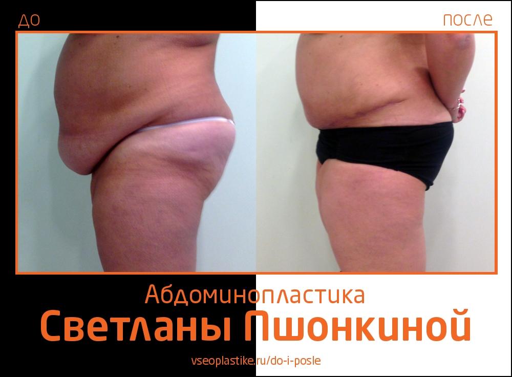 Фотографии до и после абдоминопластики у пластического хирурга Светланы Пшонкиной