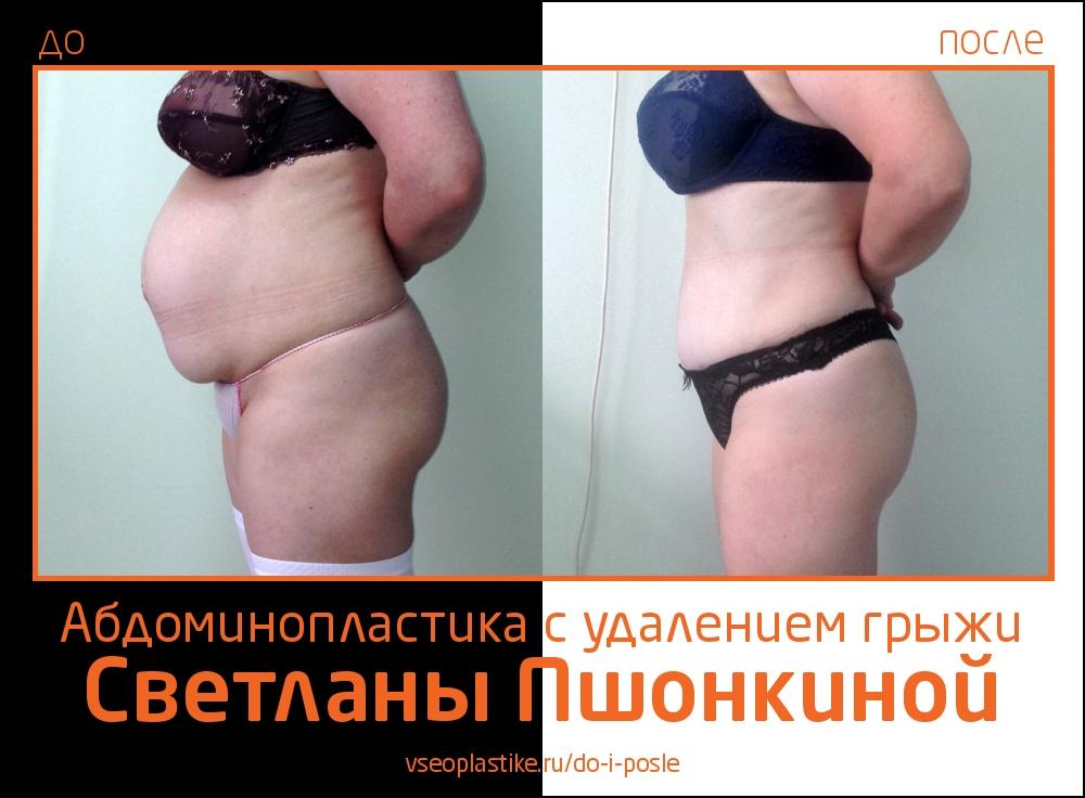 Фотографии до и после абдоминопластики с удалением грыжи у пластического хирурга Светланы Пшонкиной