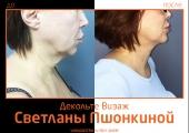 Фото до и после подтяжки шеи Декольте Визаж  у пластического хирурга Светланы Пшонкиной .