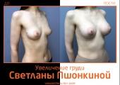 Фото до и после увеличения груди Ideal Breast у пластического хирурга Светланы Пшонкиной